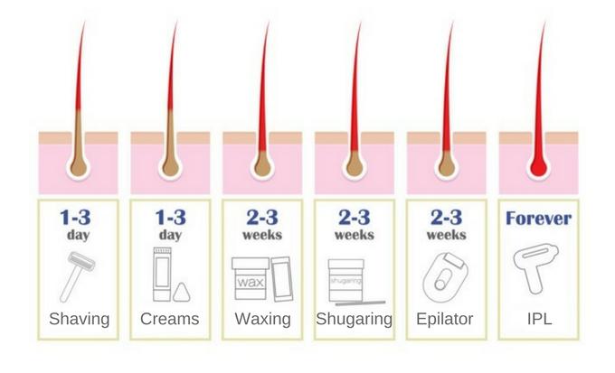 hair removal methods - IPL vs shaving